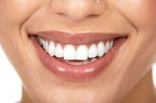 1 x 10ml 22% Teeth Whitening Gel - Top Up Gel -