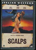 EBOND Scalps DVD D568260