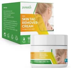 Pureskin Mole Remover, Wart Remover, Skin Tag remover, Plantar Warts