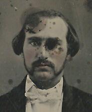 CIVIL WAR ERA AMBROTYPE PHOTOGRAPH MAN WITH MISSING EYE?