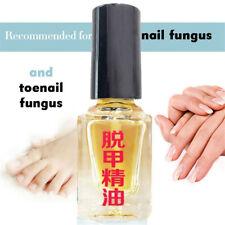 1x5ml  Nail Toe Nail Finger Anti Fungal Nail polish Manicure Nail Essential Oil