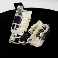 Dental Implant Teachin Disease Study Teeth Model With Restoration & Bridge Tooth