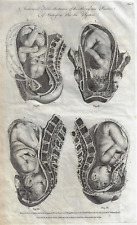 Antique Medical Print - PRACTICE OF MIDWIFERY - Copper Engraving - 1791