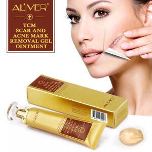 ALIVER Acne Scar Removal Cream Gel Ointment Stretch Cut Burn Spot Mark Treatment