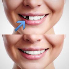 KIT di riparazione temporanea dente Fix denti rotti e riempie gli spazi
