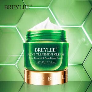 Tea Tree Acne Removal Anti Pimple Oil Control  Moisturizing Essence Cream