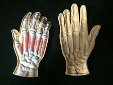Hand Skeleton Muscles Anatomy Anatomical Pathology Model Dermatology Psoriasis