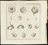 1777 - Grabado Receta - Disección de Un Œil. Medicina, Cirugía
