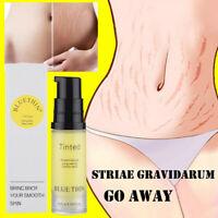 Women Stretch Marks Repair Cream Removal Scar Cream Fat Scar Striae Treatment