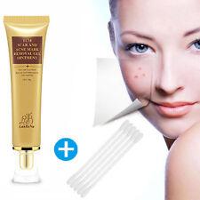 Women Ladies Acne Scar Removal Cream Skin Repair Face Cream Acne Spot 30ml US