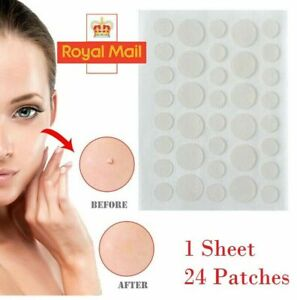 Pimple Spot Master Acne Patch - 2021 NEW Hydrocolloid Acne and Skin Tag Remover