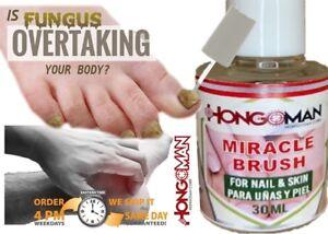 Hongo sana las uñas enfermas quick nail fungus tratamiento para hongos quick New
