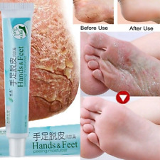 De pies crema para resequedad