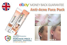Anti-Acne Pack for Dark Spot | Blemishes | Face Pigmentation