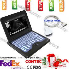 USA Digital Laptop/portable notebook B-Ultrasound Scanner/Machine System+Convex