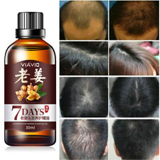 Haircare Growth Essence Liquid Fast Restoration Hair Hair Loss Treatment New ZHU