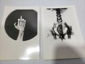 X-Ray Photography Art - Set of 6 Vintage