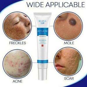 Blemish Cream Spots Removal Treatment Pimple Ointment Plant Extract Concealer