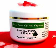ROSACEA ECZEMA COUPEROSE SENSITIVE SKIN SPIDER BROKEN VEIN FREE PP UK