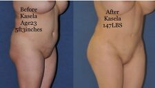 KASELA EXTREME BOOTY,HIPS,BREAST ENHANCEMENT LIFTING CREAM ,READ INGREDIENTS!8OZ