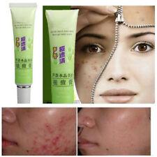 Hot Plant Element Remove Vanishing Pimples Spot Black Head Acne Treatment Cream