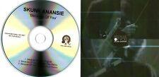 SKUNK ANANSIE - Because Of You (3 Track Promo CD) - Duke Dumont / Original Mixes