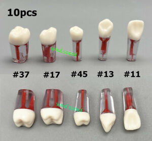 10*New Dental Root Canal Teeth Study Practice Model Endodontic Pulp RCT End File