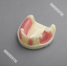 Dental Model #2004 01 - Lower Jaw Implant Practice Model with Gingiva