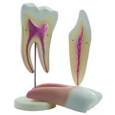 HEINESCIENTIFIC Zahnmodelle Darstellung des Zahnaufbaus Backenzahn Schneidezahn