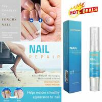 LANTHOME Nail Regen Bio-Pen Nail Care Pen Effective Fragile Nail Repair Liquid