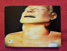 Radiohead Vintage promo Postcard Lot The Bends My Iron Lung