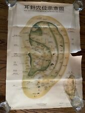 Vintage Acupuncture Poster Chart Ear East Wind Medical Hong Kong Chinese Symbols