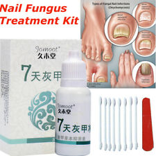 【Jomoot】 Anti Fungal Maximum Strength Nail Treatment Toenail Fungus Foot Fungi