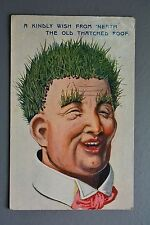 R&L Postcard: Comic Wildt & Kray 1683 Thatched Roof Grass Hair Man from Neath