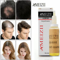 Fast Hair Growth Dense Regrowth Ginger Serum Oil Anti Loss Treatment Essence New