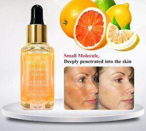 Vitamin C Serum Face Whitening Essence Brighten Skin Fade Dark Spots Freckle