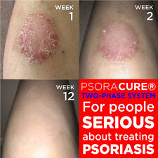 #1 PSORIASIS GONE ADVANCED TREATMENT GIVES FASTEST RESULTS GUARANTEED