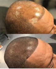 New Alternative For Baldness Without Toppik Or Hair Fiber
