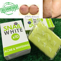 Snail white soap fast whitening clear acne NEW original good product 70 g.