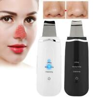 Ultrasonic Facial Ion Skin Scrubber Care Peeling Machine Pore Blackhead Cleaning