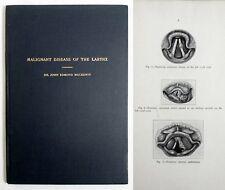 RARE Antique Medical 1934 MALIGNANT DISEASE OF THE LARYNX Throat Cancer MACKENTY