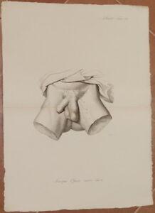 ANTONIO SCARPA 1839 LITOGRAPH MEDICINE SURGERY ANATOMY MALE GENITAL APPARATUS