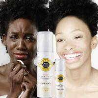 Touch of White Skin Bleaching Cream Whitening Cream Whole Body Lotion Neck US