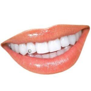 2 Zahnschmuck-Steine klar 2,2mm ✔ 2,4mm am Zahn sehr gut sichtbar - Anja Beck