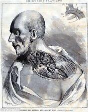 Chirurgia Vascolare:LEGATURA ASCELLARE E SOTTOCLAVICOLARE:Anatomia.Medicina.1881