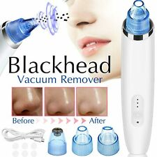 Electronic Blackhead Remover Facial Pore Cleaner Extractor Vacuum Suction Acne