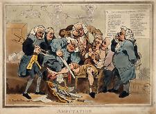 GRANDE stampa incorniciata – l'amputazione prima DELL'ANESTESIA (GENTILUOMO anatomia medica)