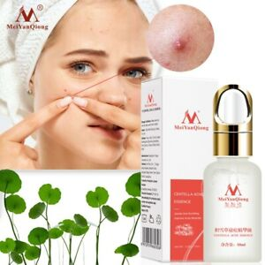 Acne Treatment Face Serum Centella Asiatica Oil Control Shrink Pores Scar Essenc