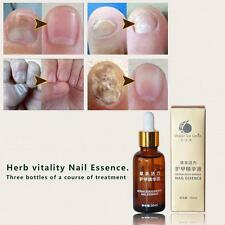 Hot Herbal Nail Repair Cure Essential Oil 30ml Onychomycosis Remover Serum