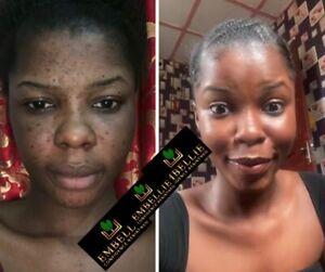 Face Polish Scrub For Problem Skin LIGHTENING, BRIGHTENING And Hyperpigmentation